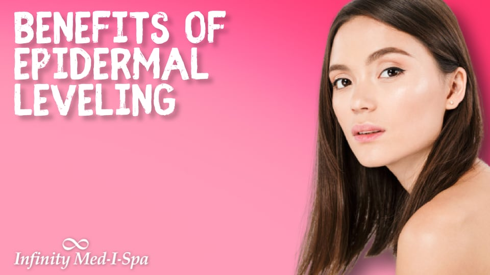 What You Need to Know About Epidermal Leveling